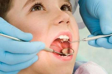 zastita-zuba-od-karijesa-305.jpg